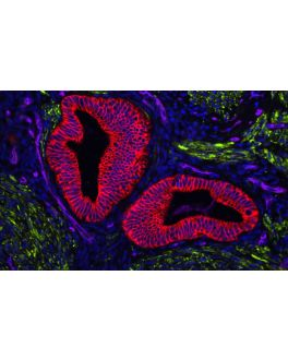 Human Uterine section (FFPE): Stained for Desmin (green) and Cytokeratin (red) using VectaFluor™ Duet Double Labeling Kit (DK-8828), and vasculature using DyLight® 649 UEA I lectin (purple). Mounted in VECTASHIELD® Vibrance™ with DAPI (blue)