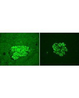 Human Pancreas (FFPE): Adjacent sections stained for insulin using fluorescein label (green). Mounted with VECTASHIELD Vibrance Antifade Mounting Medium. Note significant reduction of autofluorescence in treated section (right) with the retention of speci