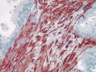 Prostate:  Smooth muscle actin (m), ImmPRESS Anti-Mouse Ig Kit, AEC Substrate Kit (red).  Hematoxylin QS counterstain (blue).  Mounted in VectaMount AQ Mounting Medium.