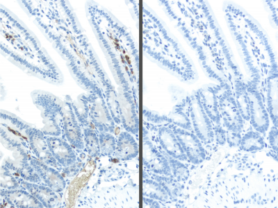 Left, Without M.O.M.:  mouse intestine stained with standard anti-mouse Ig polymer system and Vector DAB Substrate.  Hematoxylin counterstain.  Right, With M.O.M.:  mouse intestine stained with Vector M.O.M. ImmPRESS Kit, Vector DAB Substrate and no prima