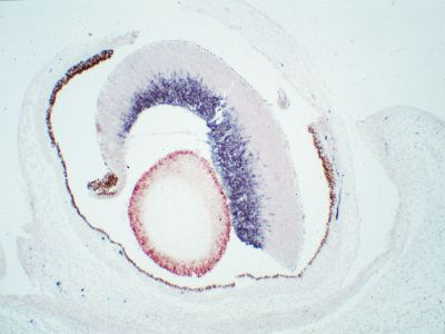 Mouse, Newborn (eye, double label):  GFAP (m), MOM Peroxidase Kit, Vector NovaRED substrate (red); Synapsin (m), MOM Peroxidase Kit, DAB+Ni substrate (gray/black).  Note contrast with endogenous pigment (brown) seen in surrounding tissues.