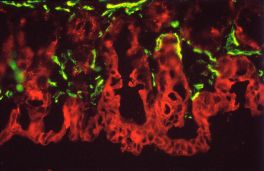 Section of mouse intestine stained with mouse monoclonal antibodies against desmin (green, Fluorescein Avidin DCS) and cytokeratin (red, Texas Red Avidin DCS) using the Vector MOM Basic Kit.