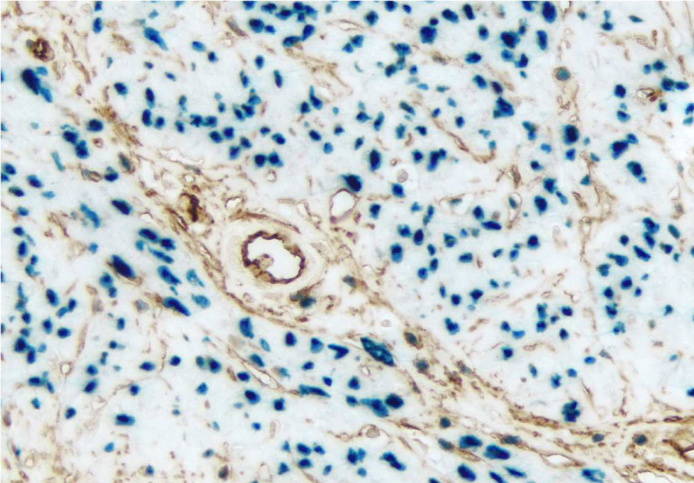 Endometrium – Double label