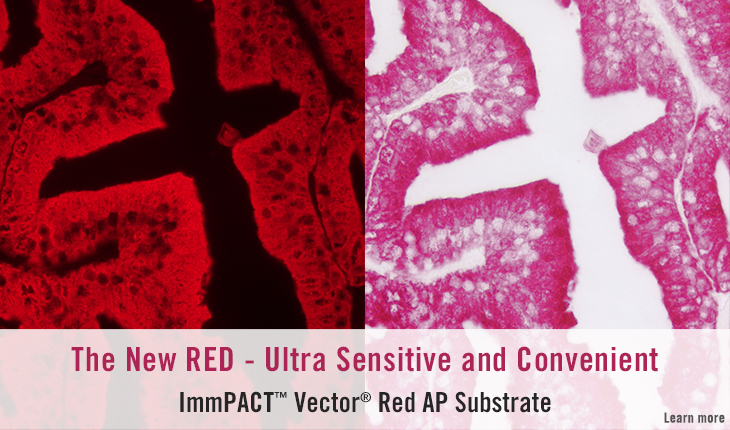 ImmPACT Vector Red AP Substrate